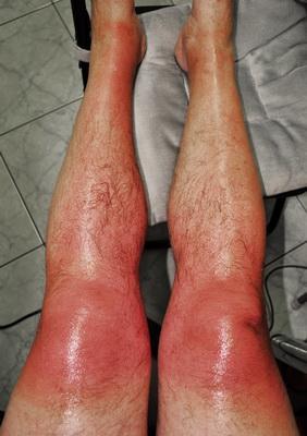 Arsura solara cauzata de fotosensibilitate indusa medicamentos